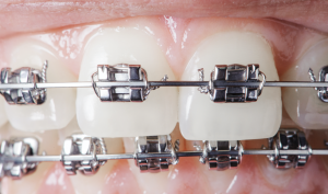 Handling Orthodontic Issues at Home